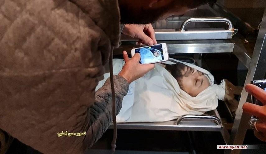 24 شهيدًا منهم 9 أطفال وامرأة و103 جرحى بالعدوان الصهيوني على غزة