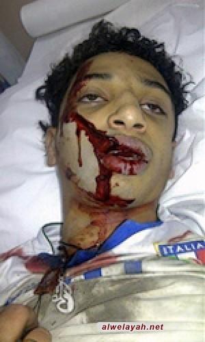 استشهاد الشاب البحريني علي جواد الشيخ برصاص قوات الأمن