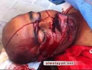 استشهاد المواطن البحريني عبد النبي العاقل